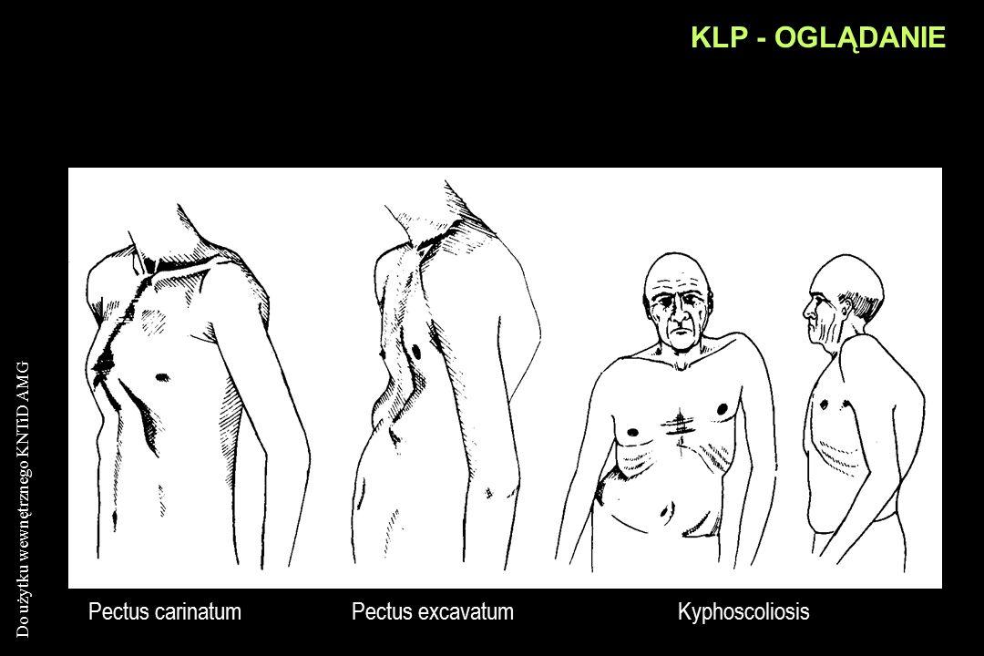 Do użytku wewnętrznego KNTiD AMG KLP - OGLĄDANIE Ocena: kształtu (deformacje !) klp ustalenie toru oddychania –brzuszny –piersiowy –udział dodatkowych