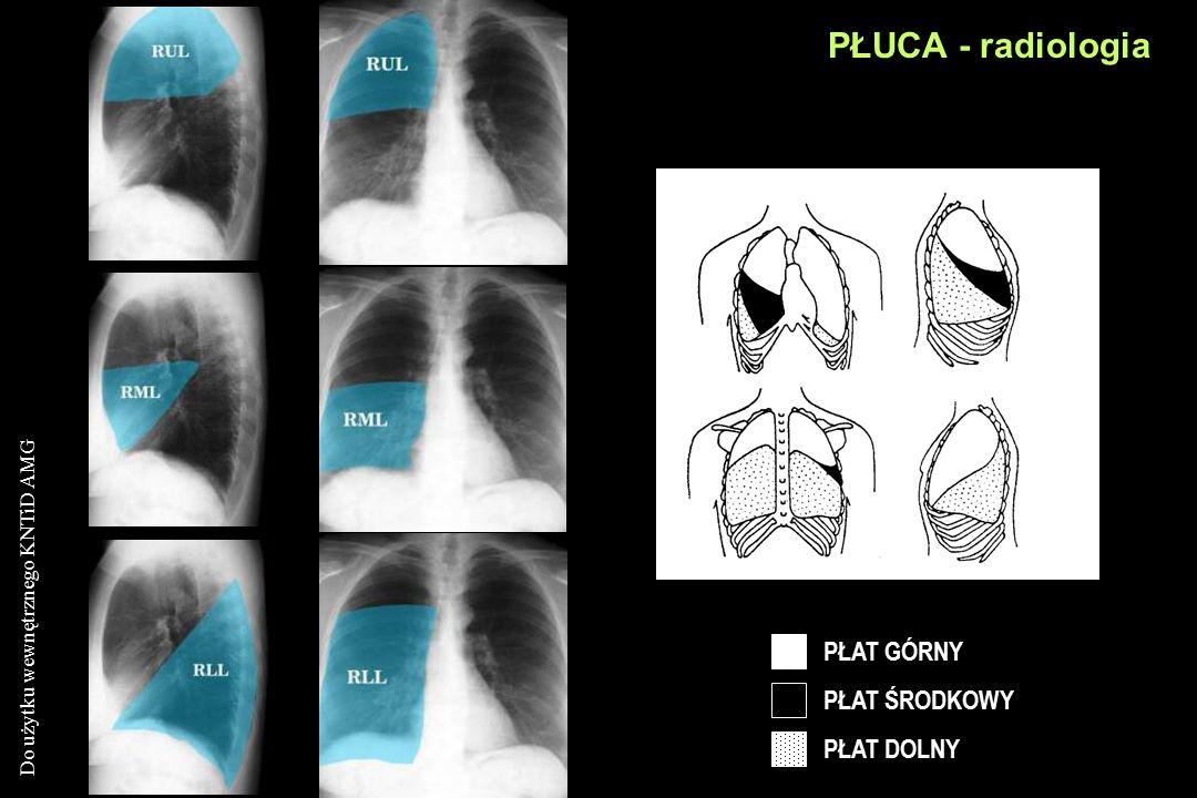 Do użytku wewnętrznego KNTiD AMG PŁAT GÓRNY PŁAT ŚRODKOWY PŁAT DOLNY PŁUCA - radiologia
