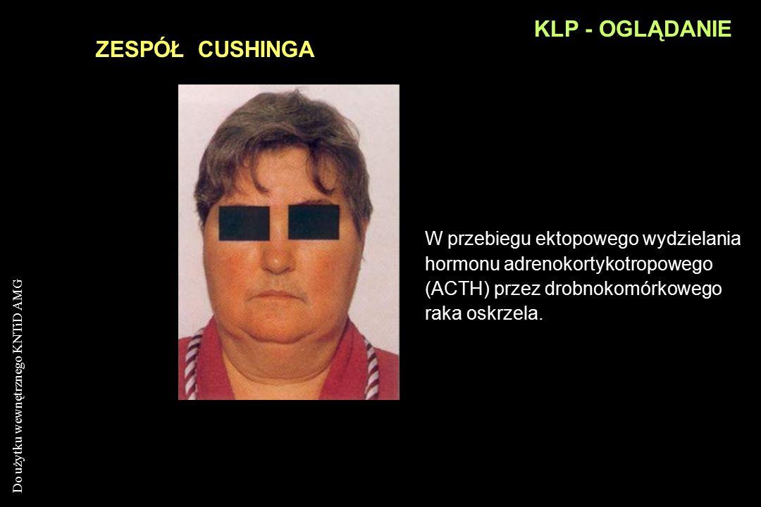 Do użytku wewnętrznego KNTiD AMG KLP - OGLĄDANIE ZESPÓŁ HORNERA