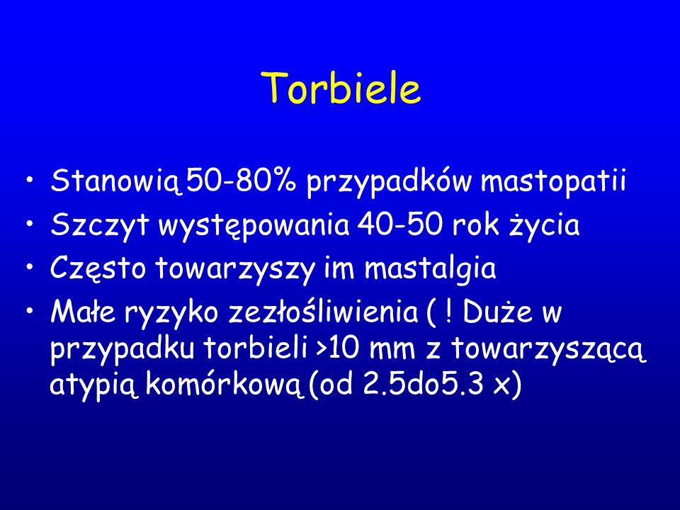 Torbiele Stanowią 50-80% przypadków mastopatii Szczyt występowania 40-50 rok życia Często towarzyszy im mastalgia Małe ryzyko zezłośliwienia ( ! Duże