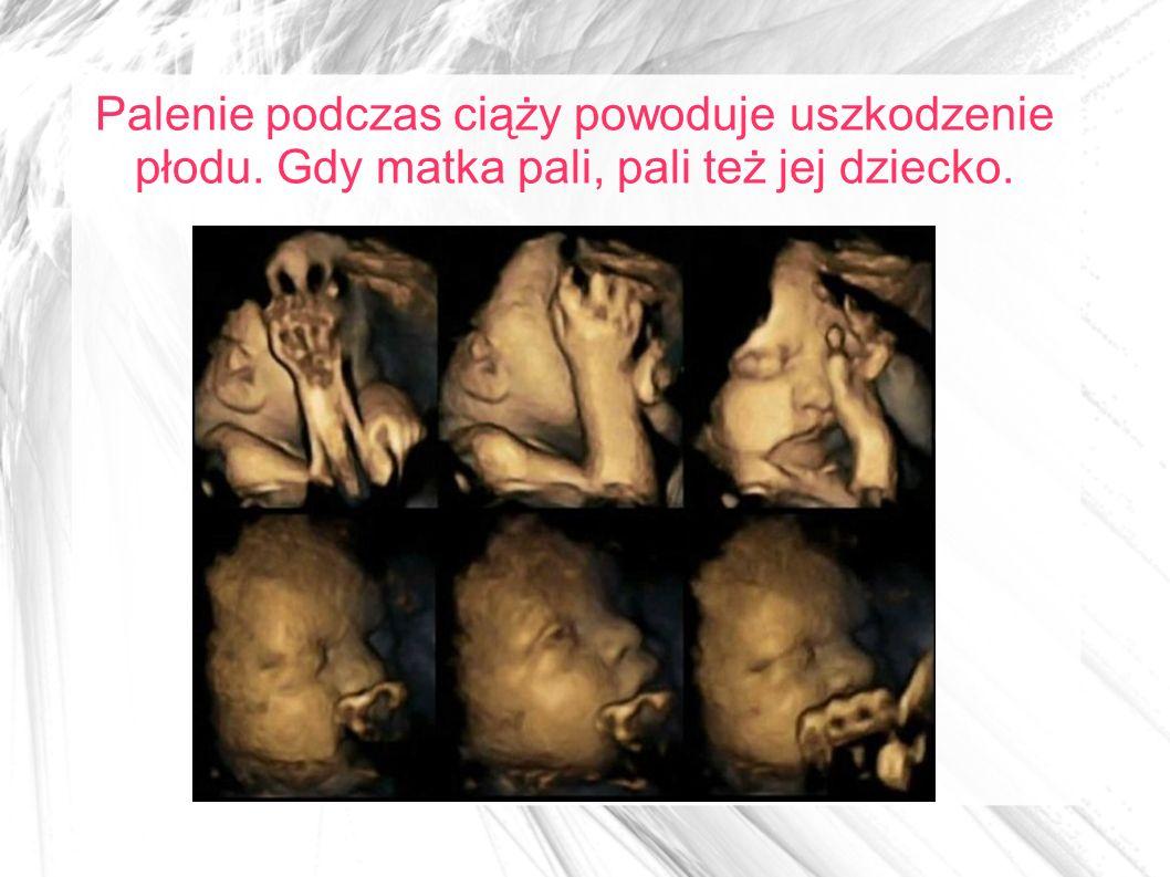 Palenie podczas ciąży powoduje uszkodzenie płodu. Gdy matka pali, pali też jej dziecko.