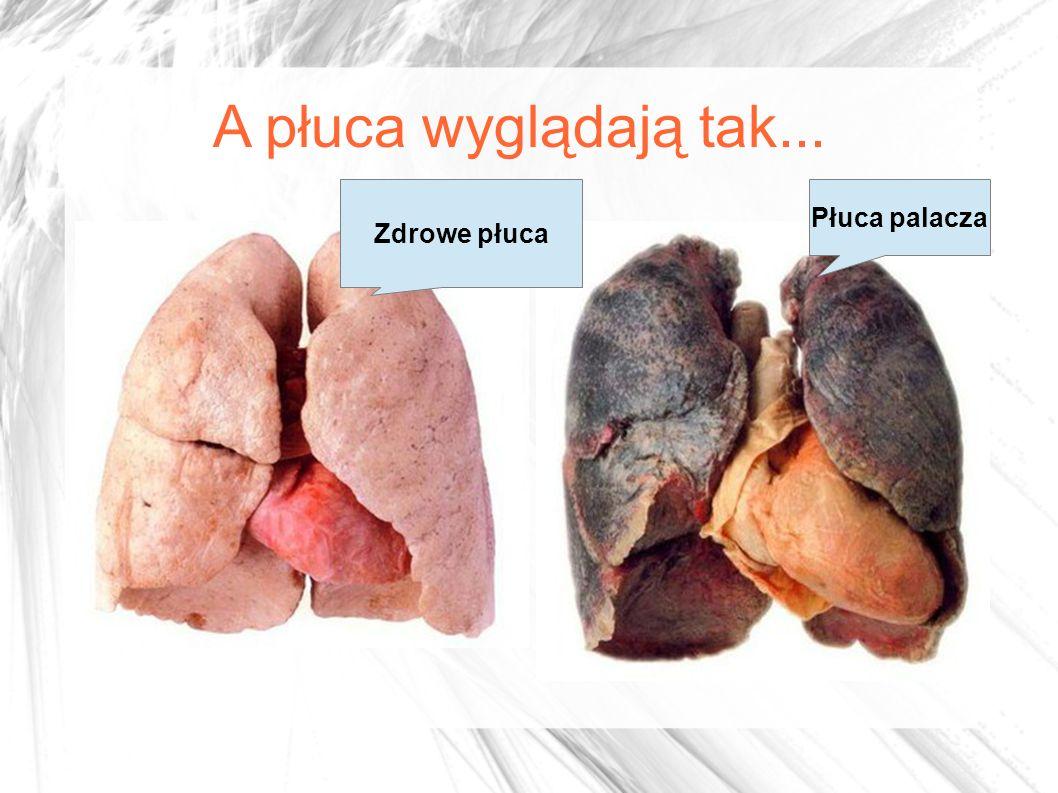 A płuca wyglądają tak... Zdrowe płuca Płuca palacza