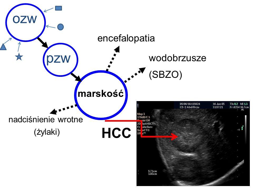 ozw pzw marskość HCC nadciśnienie wrotne (żylaki) encefalopatia wodobrzusze (SBZO)