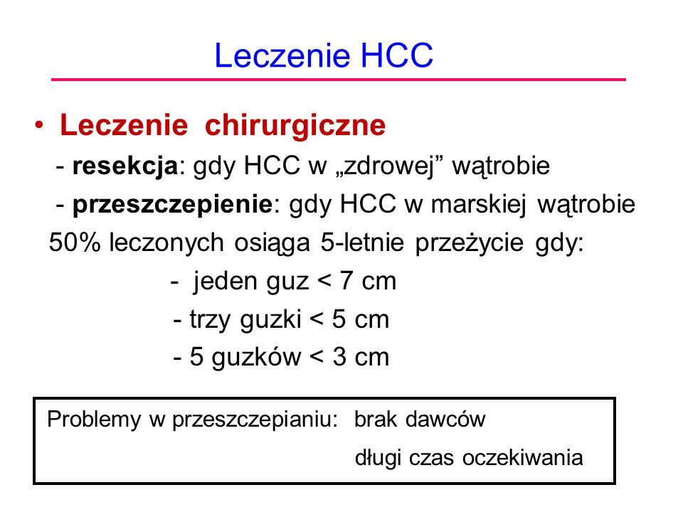 """Leczenie HCC Leczenie chirurgiczne - resekcja: gdy HCC w """"zdrowej"""" wątrobie - przeszczepienie: gdy HCC w marskiej wątrobie 50% leczonych osiąga 5-letn"""