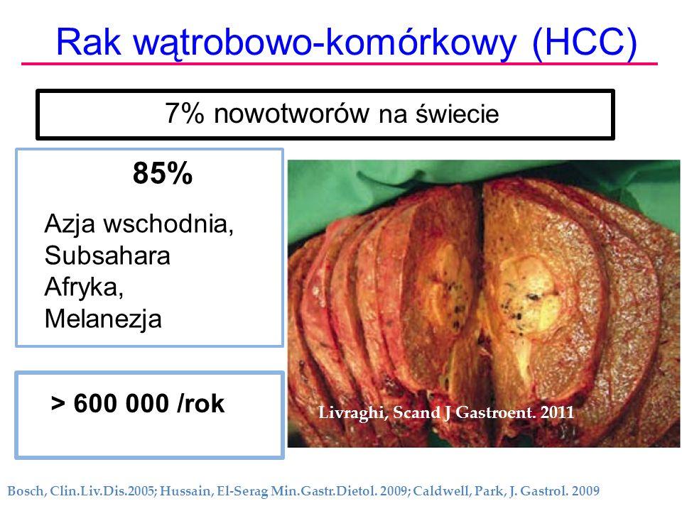 Rak wątrobowo-komórkowy (HCC) > 600 000 /rok 85% Azja wschodnia, Subsahara Afryka, Melanezja Bosch, Clin.Liv.Dis.2005; Hussain, El-Serag Min.Gastr.Die