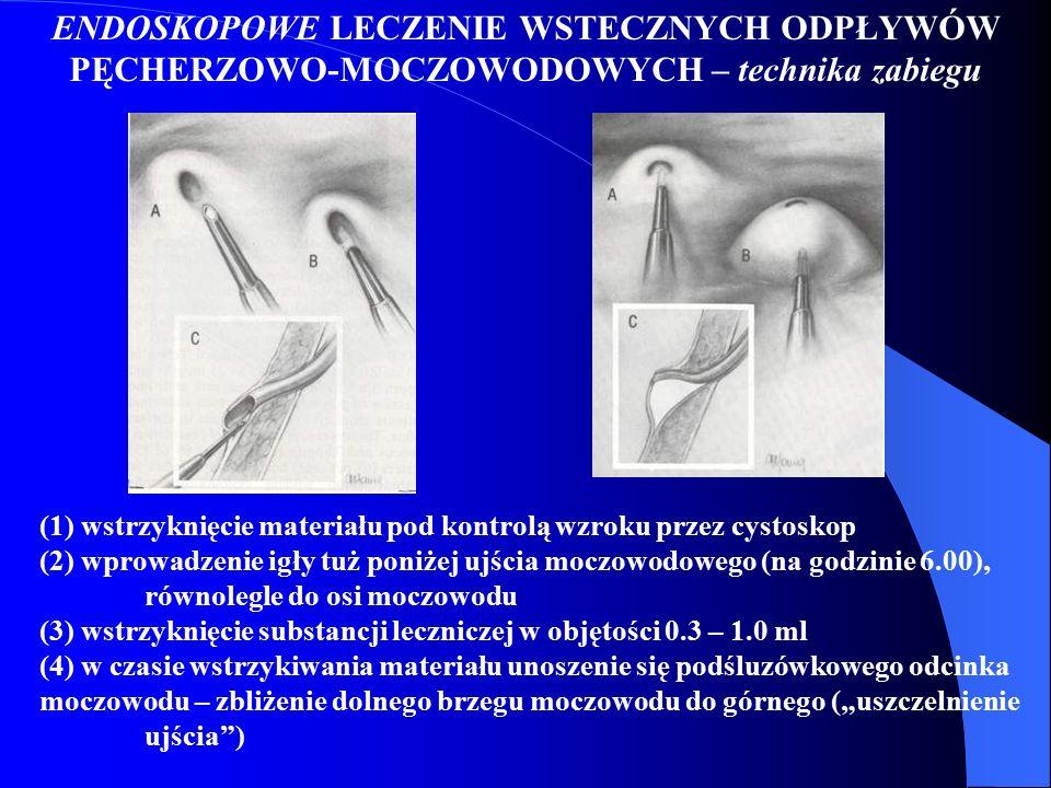 ENDOSKOPOWE LECZENIE WSTECZNYCH ODPŁYWÓW PĘCHERZOWO-MOCZOWODOWYCH – technika zabiegu (1) wstrzyknięcie materiału pod kontrolą wzroku przez cystoskop (