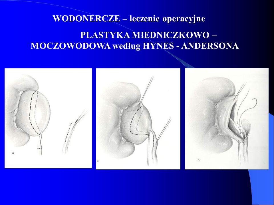 WODONERCZE – leczenie operacyjne PLASTYKA MIEDNICZKOWO – MOCZOWODOWA według HYNES - ANDERSONA