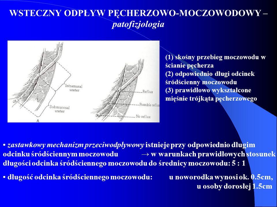 WSTECZNY ODPŁYW PĘCHERZOWO-MOCZOWODOWY – patofizjologia zastawkowy mechanizm przeciwodpływowy istnieje przy odpowiednio długim odcinku śródściennym mo