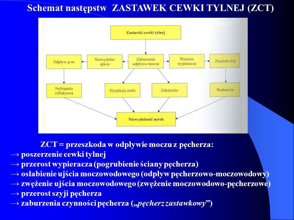 Schemat następstw ZASTAWEK CEWKI TYLNEJ (ZCT) ZCT = przeszkoda w odpływie moczu z pęcherza: → poszerzenie cewki tylnej → przerost wypieracza (pogrubie