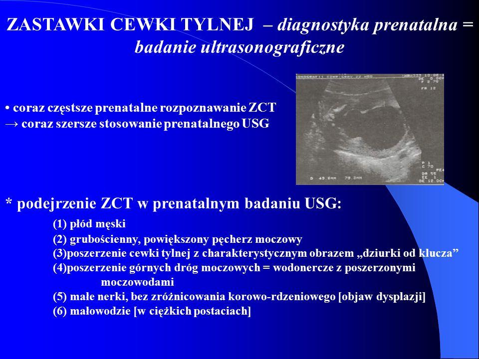 ZASTAWKI CEWKI TYLNEJ – diagnostyka prenatalna = badanie ultrasonograficzne coraz częstsze prenatalne rozpoznawanie ZCT → coraz szersze stosowanie pre