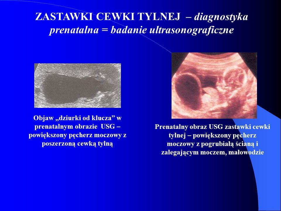 """ZASTAWKI CEWKI TYLNEJ – diagnostyka prenatalna = badanie ultrasonograficzne Objaw """"dziurki od klucza"""" w prenatalnym obrazie USG – powiększony pęcherz"""
