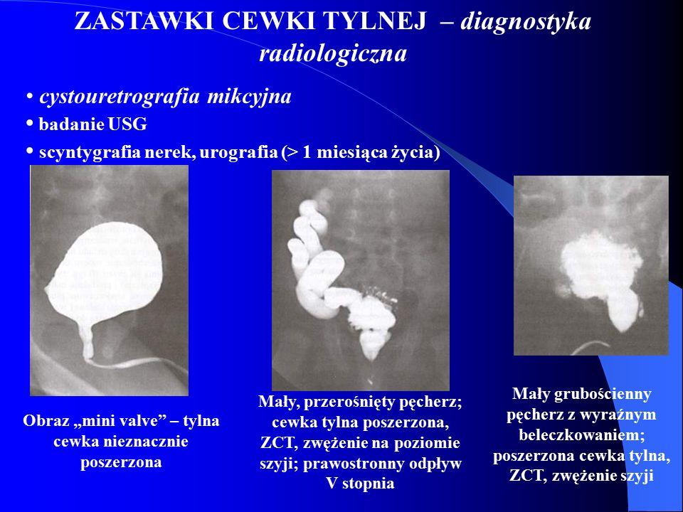 """ZASTAWKI CEWKI TYLNEJ – diagnostyka radiologiczna cystouretrografia mikcyjna badanie USG scyntygrafia nerek, urografia (> 1 miesiąca życia) Obraz """"min"""