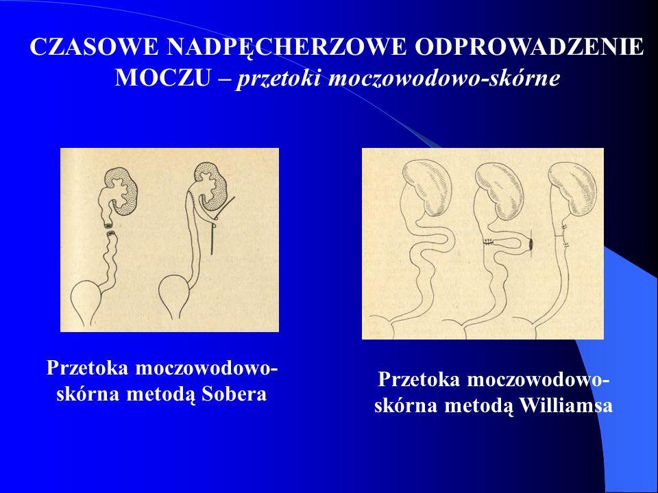 CZASOWE NADPĘCHERZOWE ODPROWADZENIE MOCZU – przetoki moczowodowo-skórne Przetoka moczowodowo- skórna metodą Sobera Przetoka moczowodowo- skórna metodą