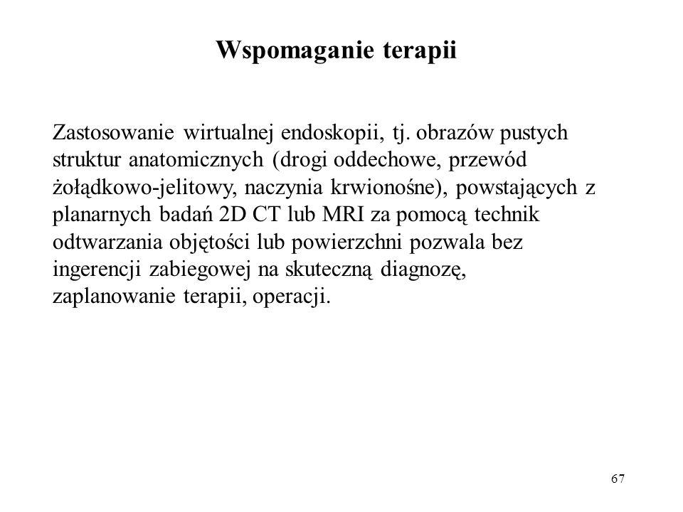 67 Wspomaganie terapii Zastosowanie wirtualnej endoskopii, tj.