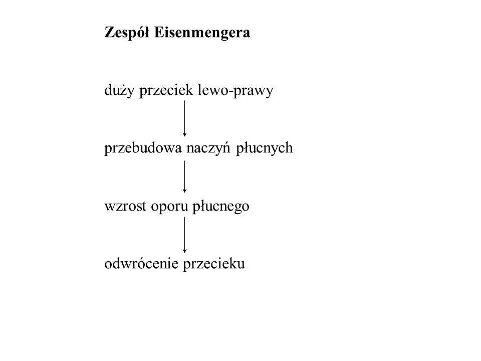 Zespół Eisenmengera