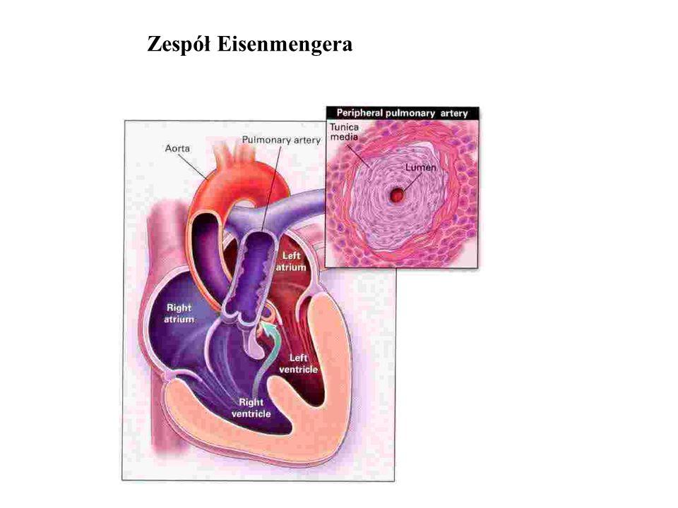- typowe przyczyny: ASD, VSD, PDA - sinica - pogorszenie tolerancji wysiłku - zaburzenia rytmu - zespół nadlepkości (niedokrwienie OUN) - krwioplucie - udar mózgu - niewydolność serca - przeżycie do 25 lat - 42%