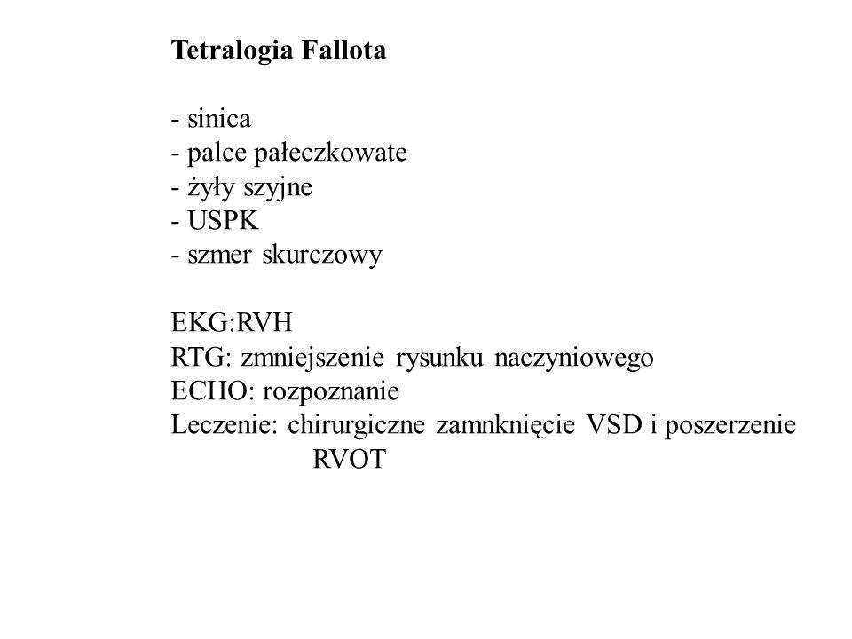 Tetralogia Fallota - ekg