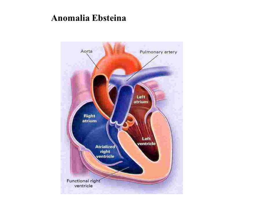 - zwykle współistnieje ASD - zwykle niedomykalność trójdzielna - zaburzenia rytmu - niewydolność serca - sinica, zesp.nadlepkości - udar mózgu