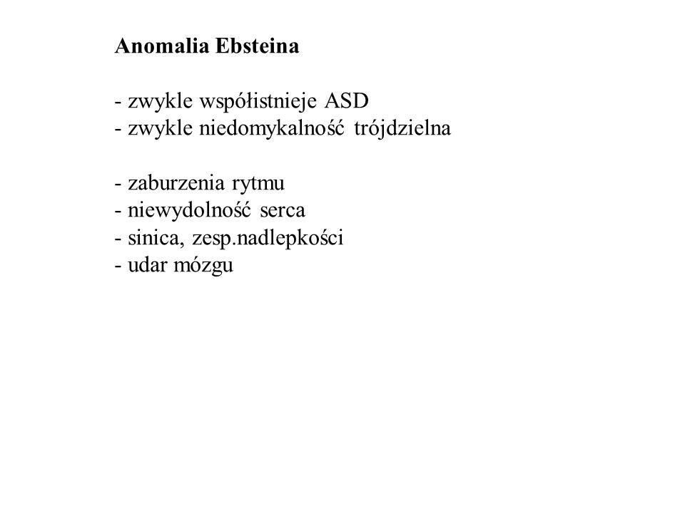 Anomalia Ebsteina - sinica - żyły szyjne - szmer skurczowy - hepatomegalia EKG: RBBB, p.
