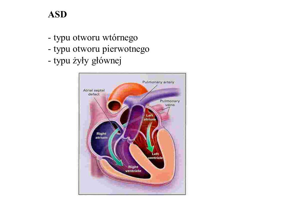 ASD - objawy i rozpoznanie - niewydolność serca (prawokomorowa) - arytmia - udar mózgu - rozdwojenie S2, szmer skurczowy nad t.pł EKG RTG ECHO Leczenie: operacja zapinka Amplatza