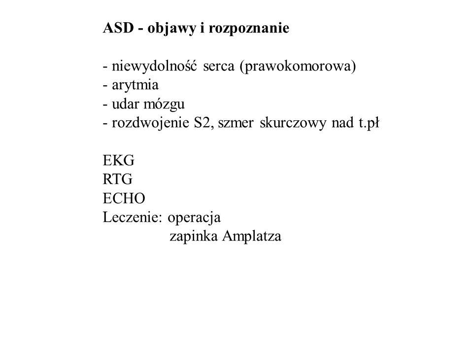 ASD - rtg