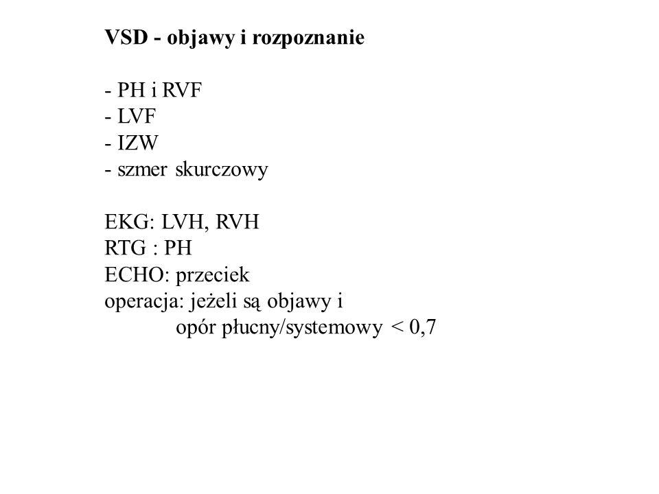 PDA- przetrwały przewód tętniczy