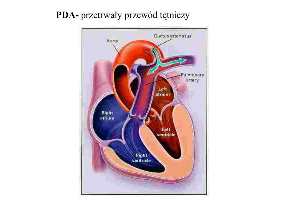 PDA - objawy i rozpoznanie - HF - arytmia (LV , LA  ) - szmer sk-rozk, II międz, lsb - IZW EKG: LVH, LA  RTG: Ao, nadciśnienie płucne, zastój ECHO: leczenie: podwiązanie, przezskórne zamknięcie gdy nie ma ciężkiego PH