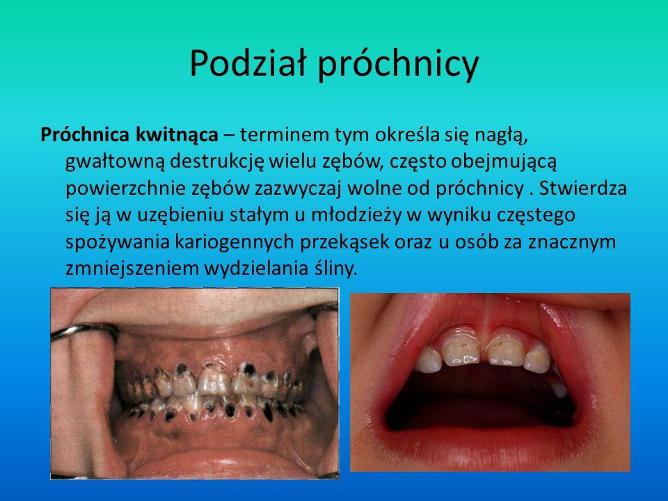 Podział próchnicy Próchnica kwitnąca – terminem tym określa się nagłą, gwałtowną destrukcję wielu zębów, często obejmującą powierzchnie zębów zazwycza