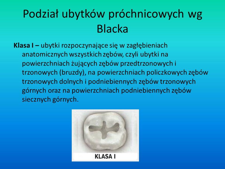 Podział ubytków próchnicowych wg Blacka Klasa I – ubytki rozpoczynające się w zagłębieniach anatomicznych wszystkich zębów, czyli ubytki na powierzchn