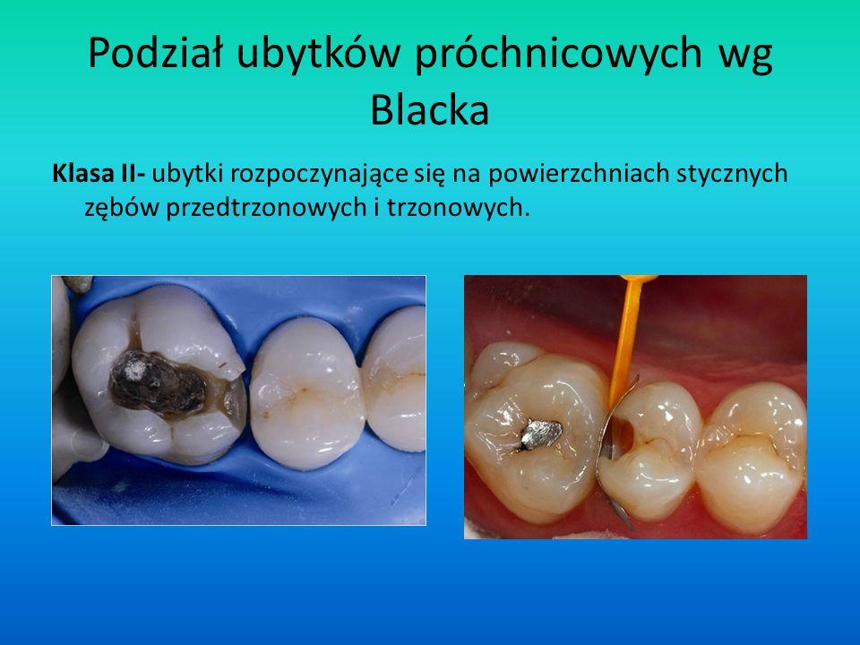 Podział ubytków próchnicowych wg Blacka Klasa II- ubytki rozpoczynające się na powierzchniach stycznych zębów przedtrzonowych i trzonowych.