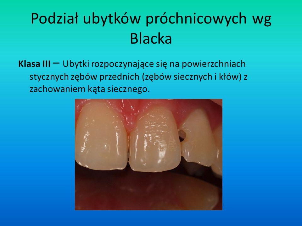 Podział ubytków próchnicowych wg Blacka Klasa III – Ubytki rozpoczynające się na powierzchniach stycznych zębów przednich (zębów siecznych i kłów) z z