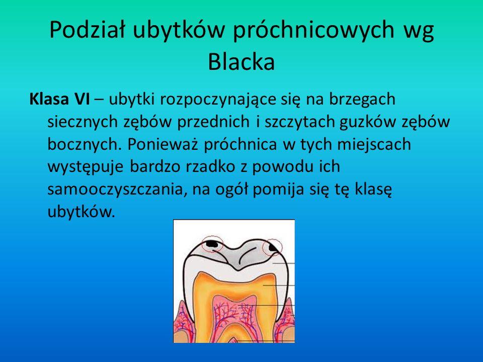 Podział ubytków próchnicowych wg Blacka Klasa VI – ubytki rozpoczynające się na brzegach siecznych zębów przednich i szczytach guzków zębów bocznych.