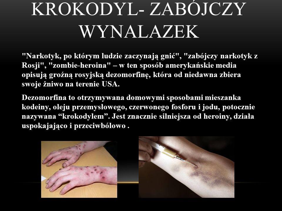 BENZODIAZEPINY Benzodiazepiny, leki benzodiazepinowe – grupa leków o działaniu przeciwlękowym, uspokajającym, nasennym, przeciwdrgawkowym
