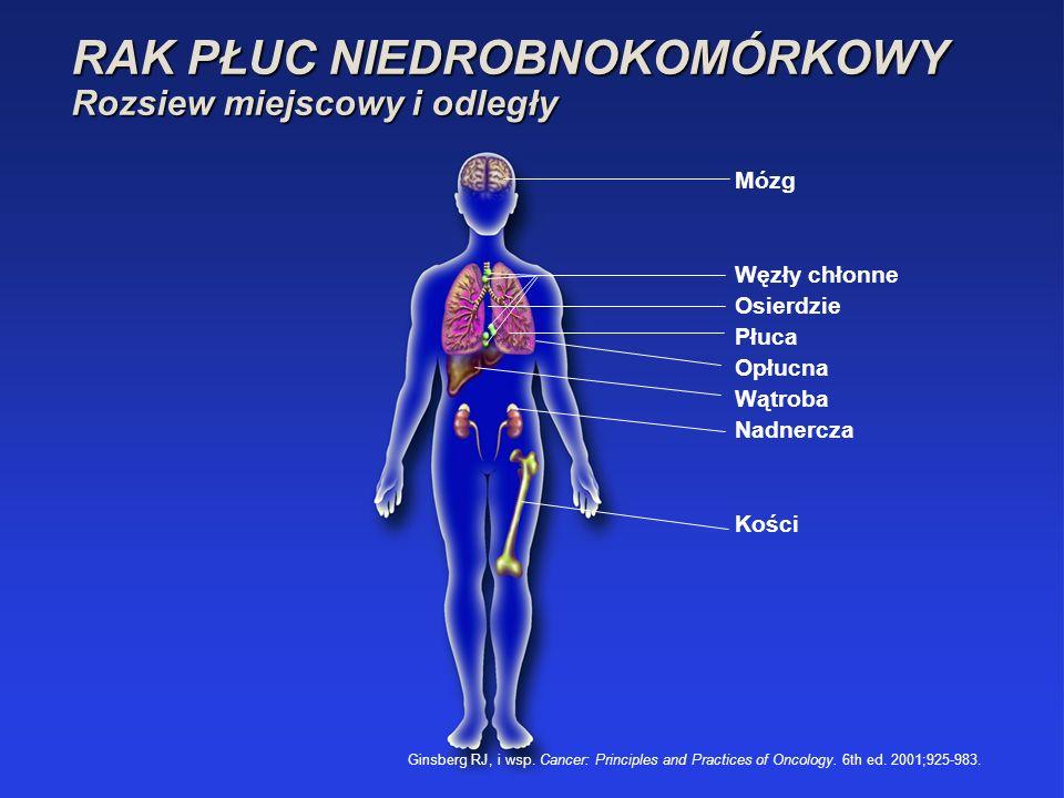 Mózg Węzły chłonne Osierdzie Płuca Opłucna Wątroba Nadnercza Kości Ginsberg RJ, i wsp. Cancer: Principles and Practices of Oncology. 6th ed. 2001;925-