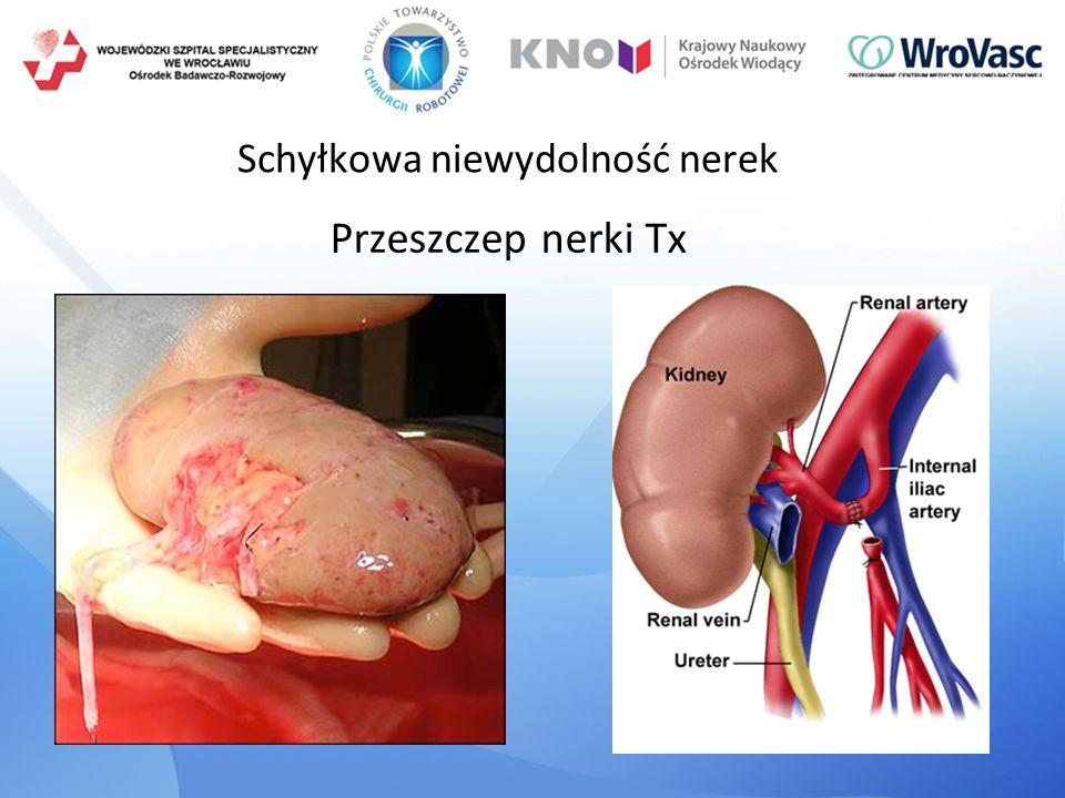 Schyłkowa niewydolność nerek Przeszczep nerki Tx