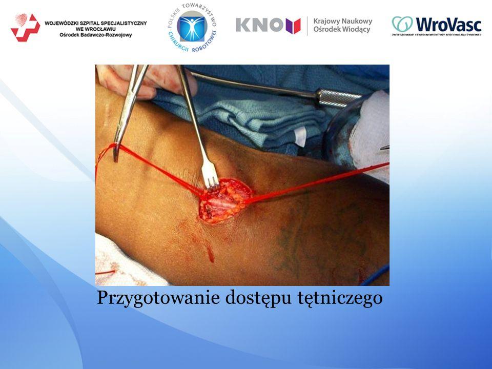 Przygotowanie dostępu tętniczego