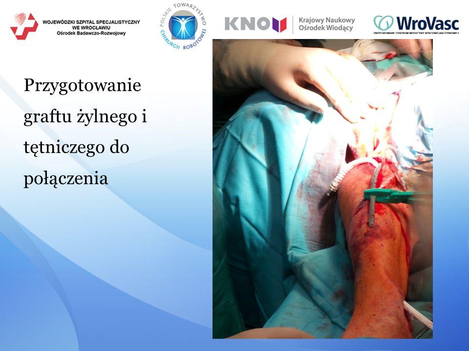 Przygotowanie graftu żylnego i tętniczego do połączenia