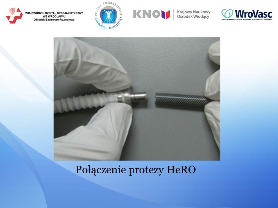 Połączenie protezy HeRO