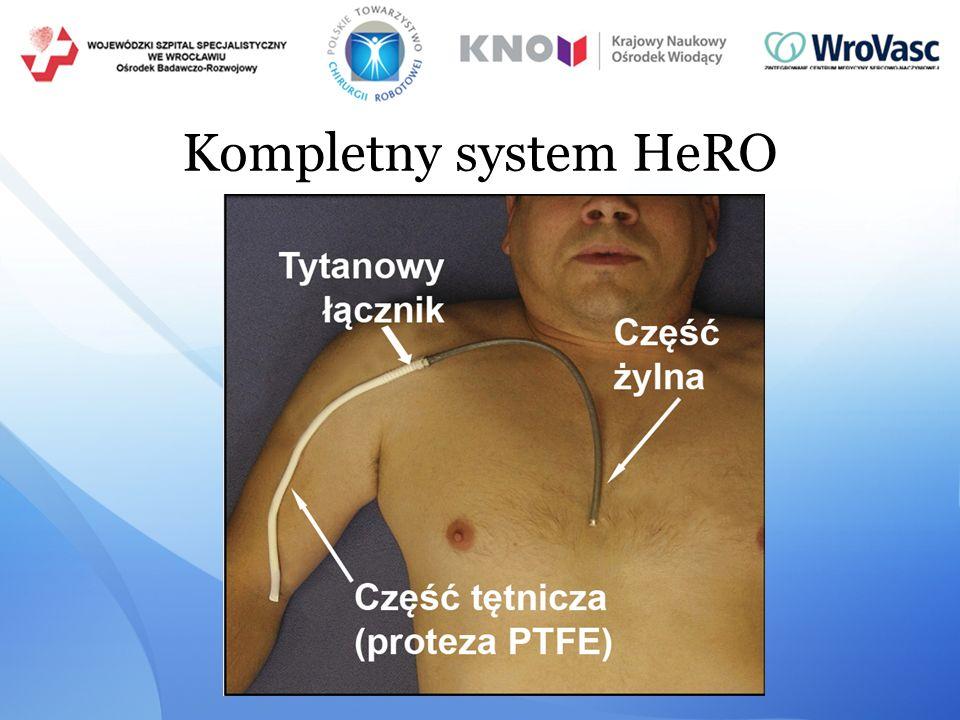 Kompletny system HeRO