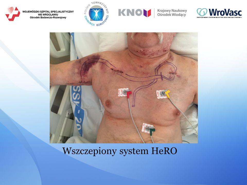 Wszczepiony system HeRO