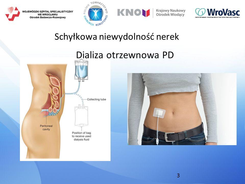 3 Schyłkowa niewydolność nerek Dializa otrzewnowa PD
