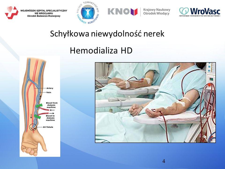 4 Schyłkowa niewydolność nerek Hemodializa HD