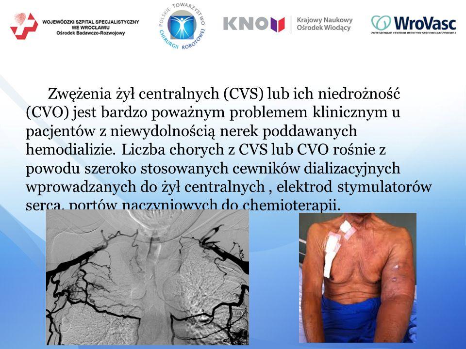 Zwężenia żył centralnych (CVS) lub ich niedrożność (CVO) jest bardzo poważnym problemem klinicznym u pacjentów z niewydolnością nerek poddawanych hemo