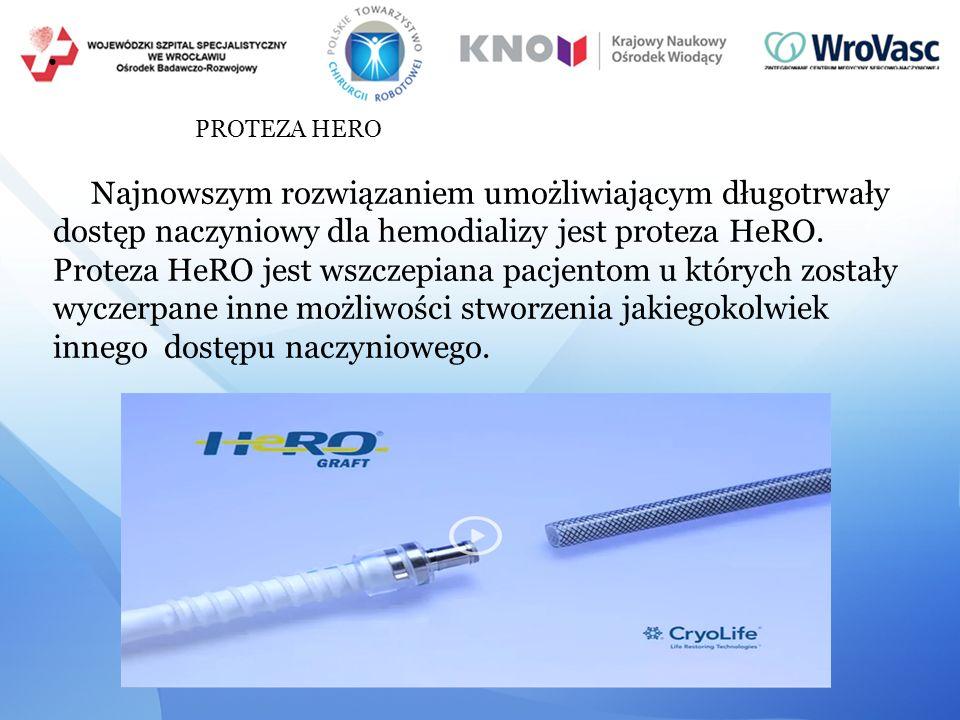 ● PROTEZA HERO Najnowszym rozwiązaniem umożliwiającym długotrwały dostęp naczyniowy dla hemodializy jest proteza HeRO. Proteza HeRO jest wszczepiana p