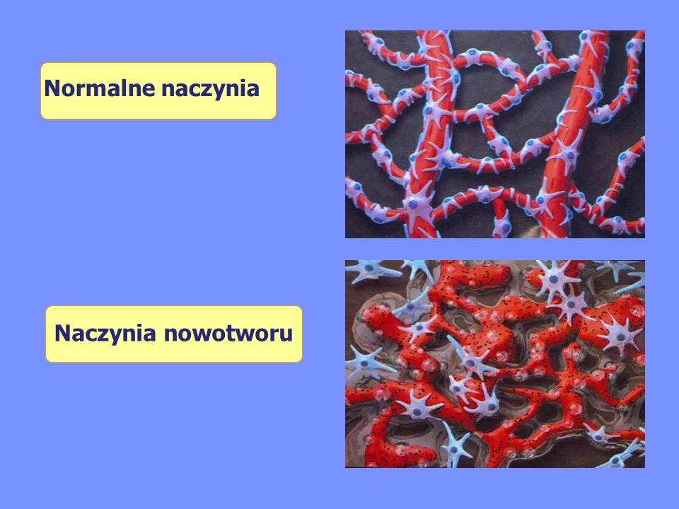Normalne naczynia Naczynia nowotworu