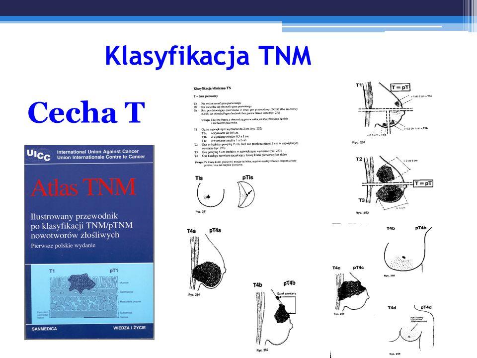 Klasyfikacja TNM Cecha T