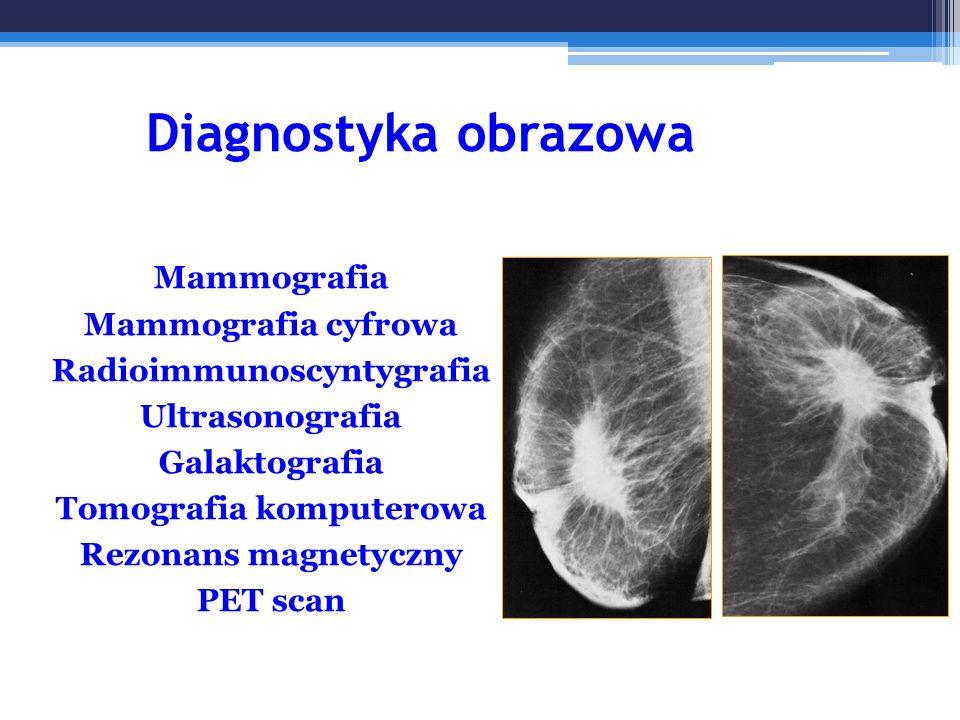 Diagnostyka obrazowa Mammografia Mammografia cyfrowa Radioimmunoscyntygrafia Ultrasonografia Galaktografia Tomografia komputerowa Rezonans magnetyczny