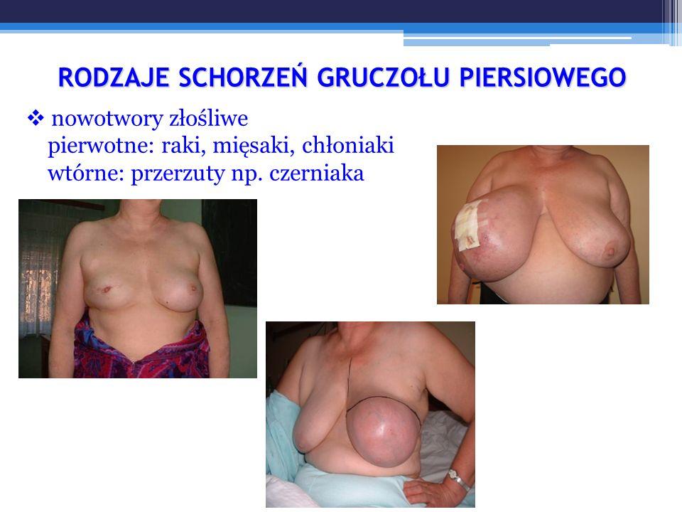 """Przypadek 2 Kobieta lat 36 WYWIAD: bolesność piersi nasilona w drugiej połowie cyklu, 3 porody, nie karmiła piersią, miesiączkuje nieregularnie, wywiad rodzinny bez obciążeń BADANIE PRZEDMIOTOWE: piersi spoiste, tkliwe o niejednorodnej """"guzowatej strukturze, węzły chłonne niebadalne DIAGNOZA: podejrzenie mastopatii ZALECENIA: skierowanie do onkologa lub ginekologa – badanie USG piersi ew."""
