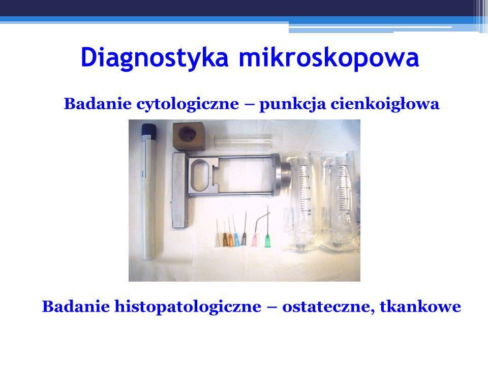 Diagnostyka mikroskopowa Badanie cytologiczne – punkcja cienkoigłowa Badanie histopatologiczne – ostateczne, tkankowe