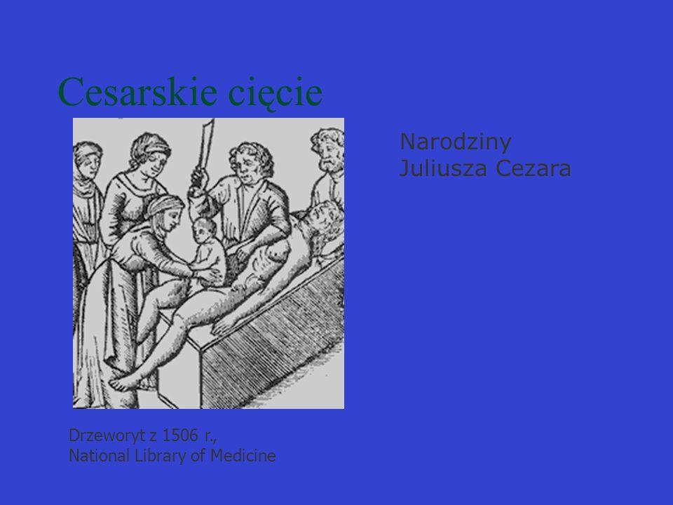 Cesarskie cięcie Drzeworyt z 1506 r., National Library of Medicine Narodziny Juliusza Cezara